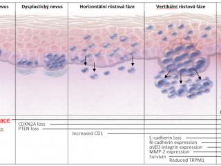 Patogeneze_melanomu