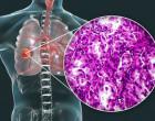 rakovina_plic_tumoc_plice_schema_detail_nadoru_nador