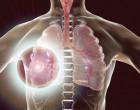 rakovina_plic_tumoc_plice_schema_detail_nadoru_nador_