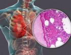 patologie_nalez_plice_onkologie