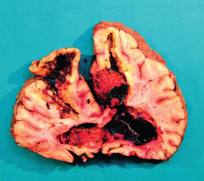 Frontální řez mozkem v oblasti frontálních laloků Pitva fixovaného mozku I přes fixaci je mozková tkáň anatomicky málo přehledná a potrhaná. Mozek prokrojen ve frontálních řezech po 2 cm. Ve frontálním laloku vlevo hemoragie a vs malatické ložisko velikosti 4 x 3cm. Rozsáhlé krvácení je v pravé hemisféře, zasahuje od zadní části frontálního laloku až k laloku okcipitálnímu a propaguje se do postranní mozkové komory velikosti přibližně 12 x 8 x 7 cm. Další hemoragické ložisko je v okcipitálním laloku vlevo velikosti 6 x 5 x 5 cm. Mozeček na řezu přiměřený, pons a oblongata s drobnými hemoragickými ložisky. Spodinové arterie jsou převážně jemné s ojedinělými lipoidními pláty. Mozkové pleny jemné, lehce překrvené.