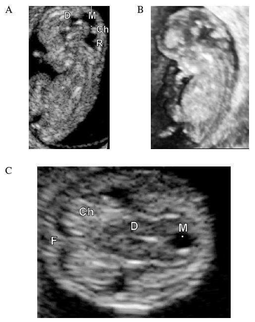 UZ zobrazení embrya v 11. týdnu. 2D obraz (A), 3D rekonstrukce (B), transverzální řez v úrovni III. komory (C). CRL = 35,4 mm. D – diencefalon (III. komora), M – mezencefalon, R – rombencefalon (IV. komora), Ch – choroidní plexus postranní komory, F – falx cerebri
