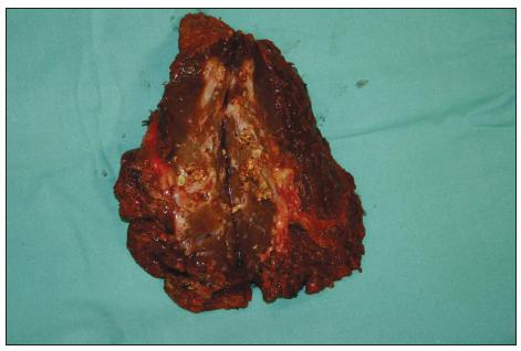Resekát jater (6. a 7. segment) s dilatací žlučovodů a mnohočetnými konkrementy Fig. 4. Resected tissue underwent liver (6<sup>th</sup> a 7<sup>th</sup> segment) with dilatation of bile duct and multiple stones