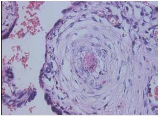 Fibrinový trombus s akutní aterózou – HE 400krát.