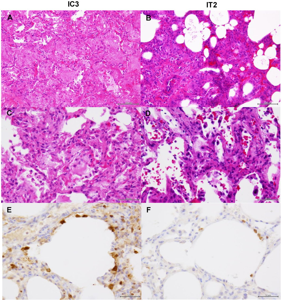 Histological analysis of pneumonia and distribution of viral antigens in immunosuppressed macaques infected with VN3040.