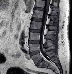 MRI bederní páteře, sagitální řez.