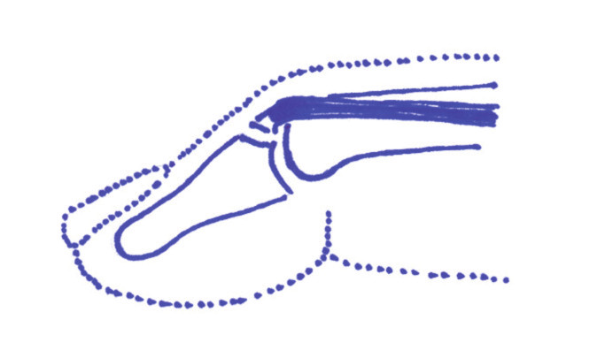 Obr. 2b. Vytržení kostního fragmentu z báze distálního článku.