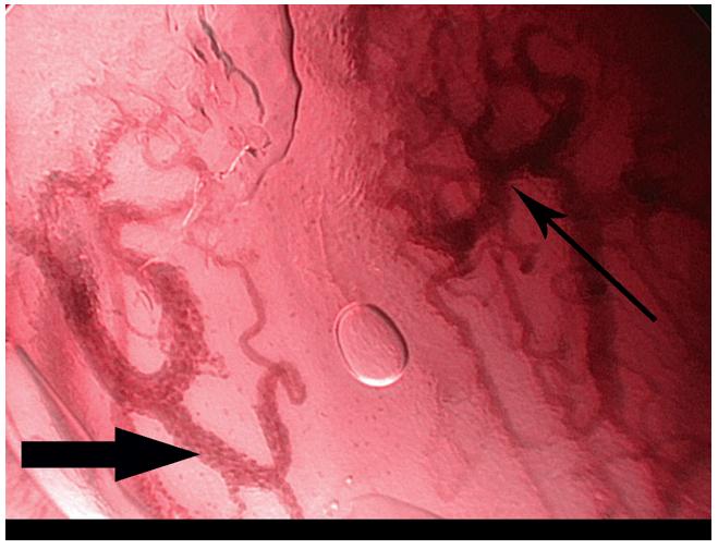 Kontaktní NBI endoskopie – spinocelulární karcinom hlasivky. Uvnitř rozšířených kapilár jsou patrné jednotlivé erytrocyty (široká šipka), typické změny vaskularizace svědčící pro malignitu (úzká šipka).