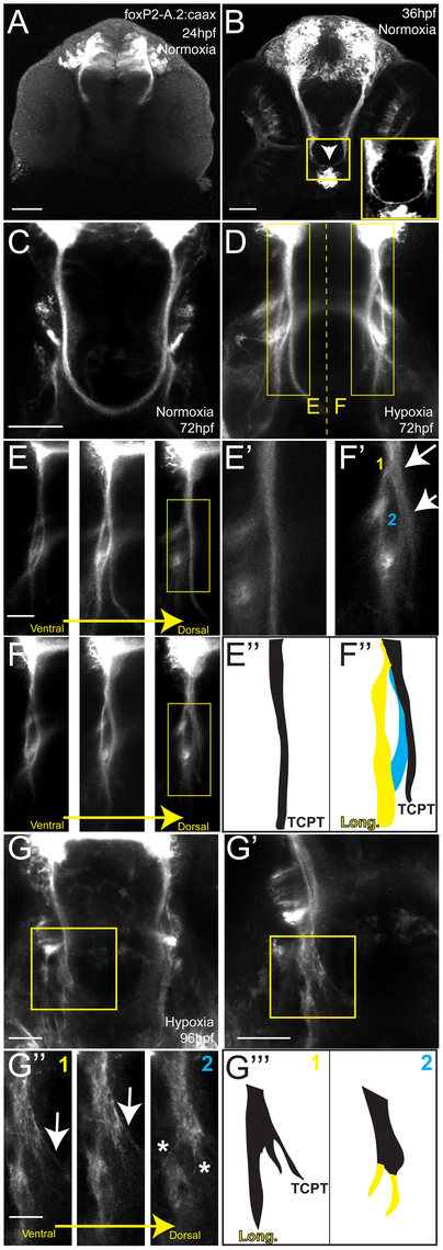 Hypoxia acts during development of the TCPTc by disrupting axon pathfinding.