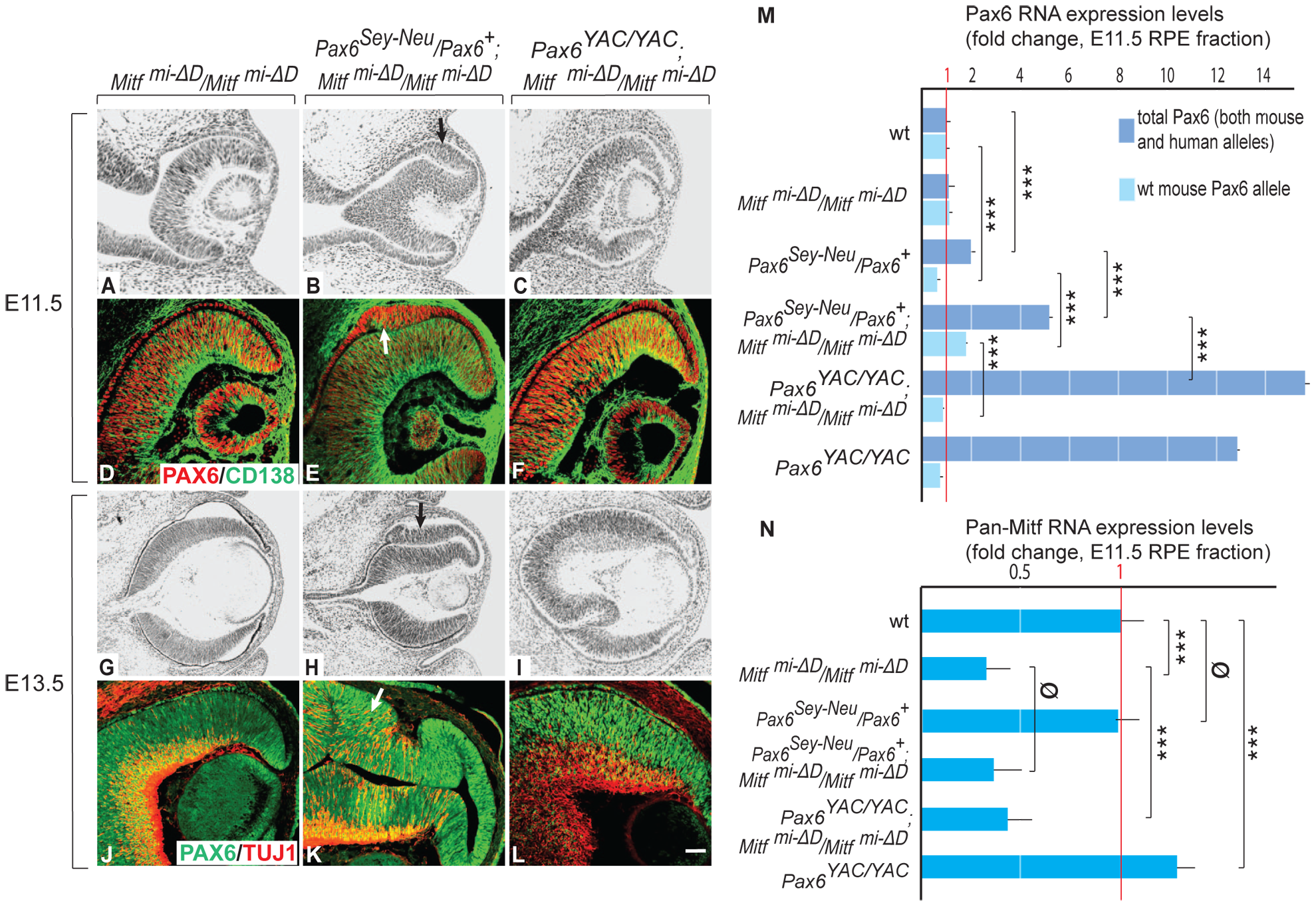 Gene dose of <i>Pax6</i> regulates dorsal RPE development in a hypomorphic <i>Mitf</i> mutant.