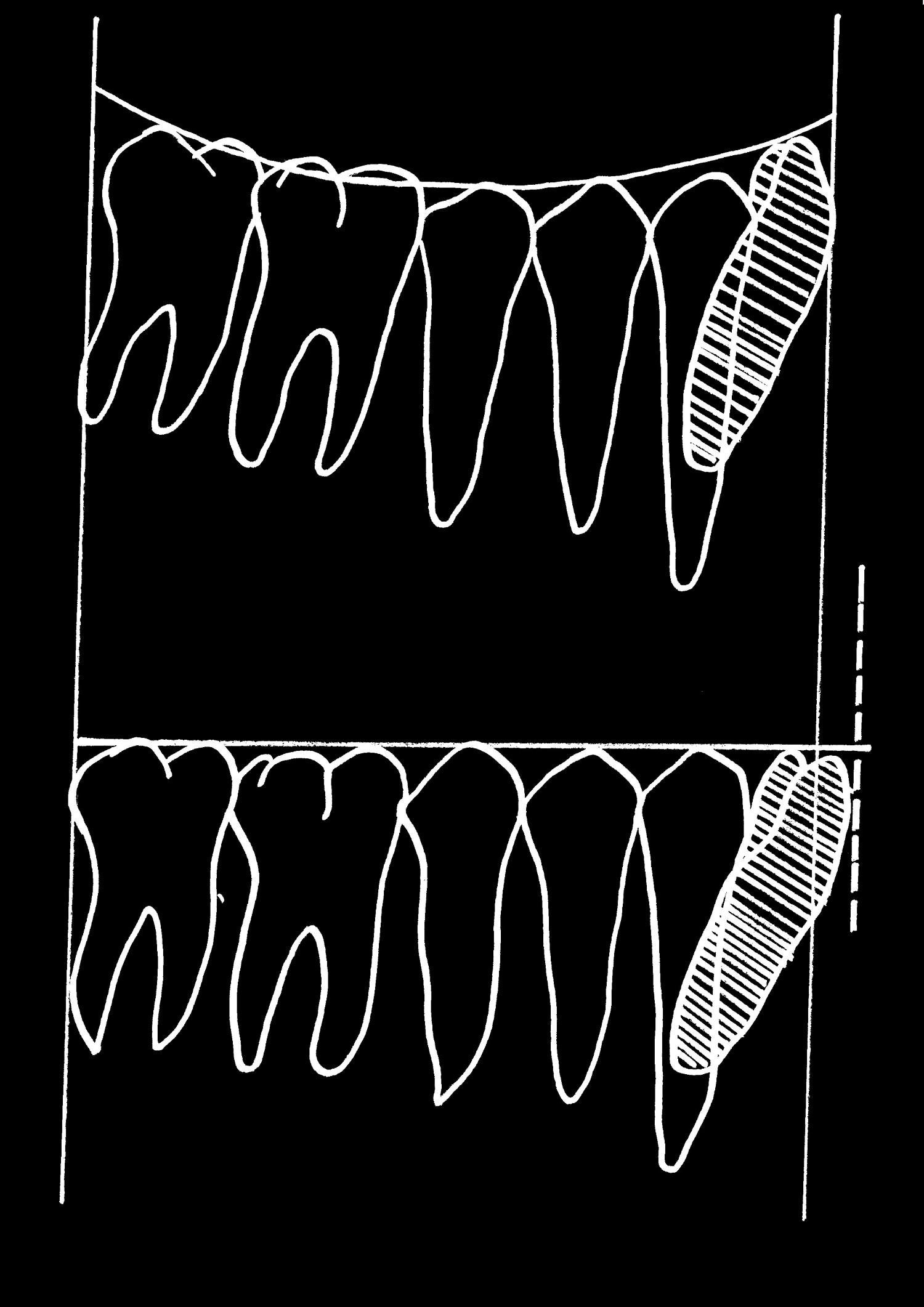 Protruze řezáků během vyrovnání Speeovy křivky (Woods, 1986)