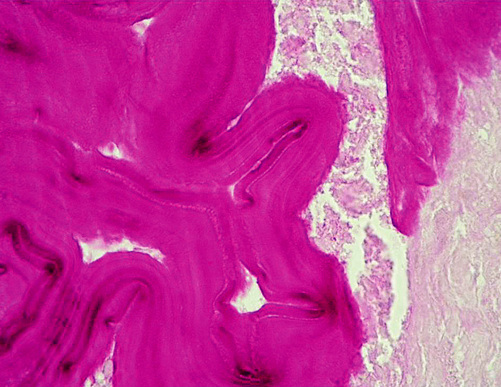 Histologický obraz – PAS pozitivní membrána parazita