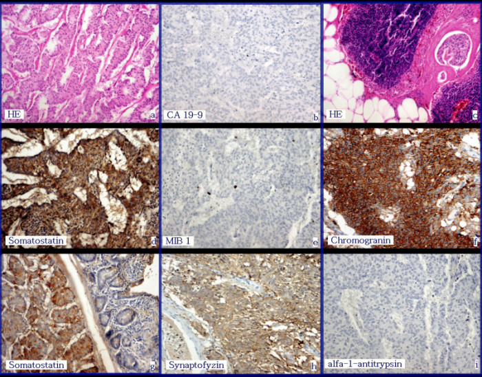 Výběr z histologických vyšetření:
