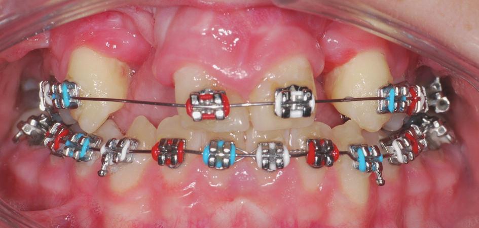 Pacientka s oboustranným celkovým rozštěpem a chybějícími zuby 12 a 22 s nasazeným fixním aparátem na horní a dolní čelisti. Ortodontickou léčbou bylo dosaženo správného postavení jednotlivých zubů horní čelisti a vyhovujícího vztahu zubních oblouků. Pacientka je připravována na protetickou rehabilitaci chrupu fixním můstkem.