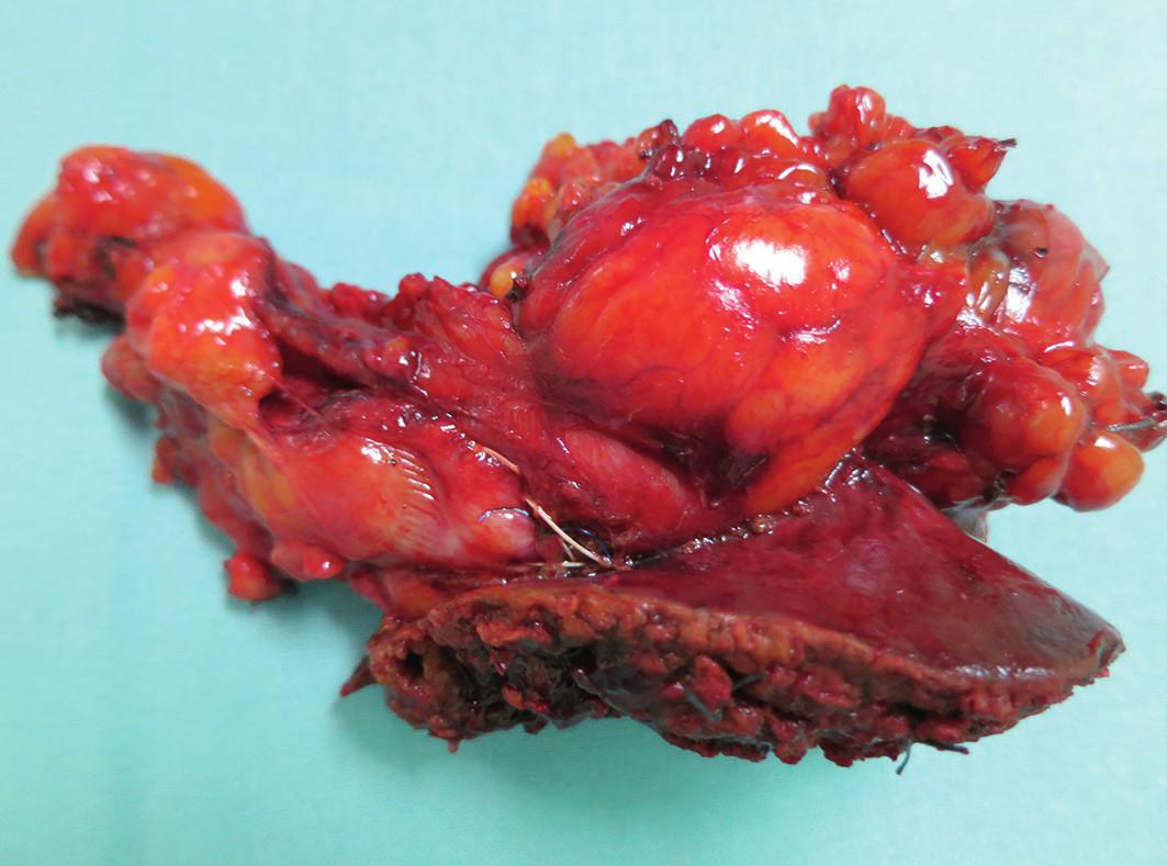 Žlučník s resekovaným lůžkem Fig. 3: Gall bladder with resected bed