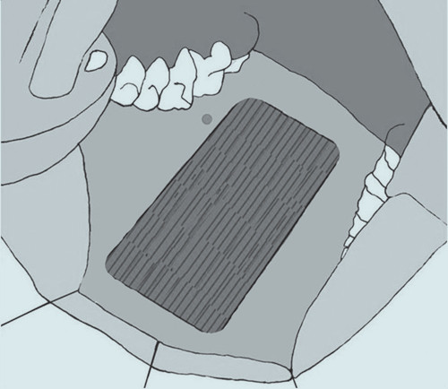 Velký defekt v oblasti odběru po odstranění štěpu.