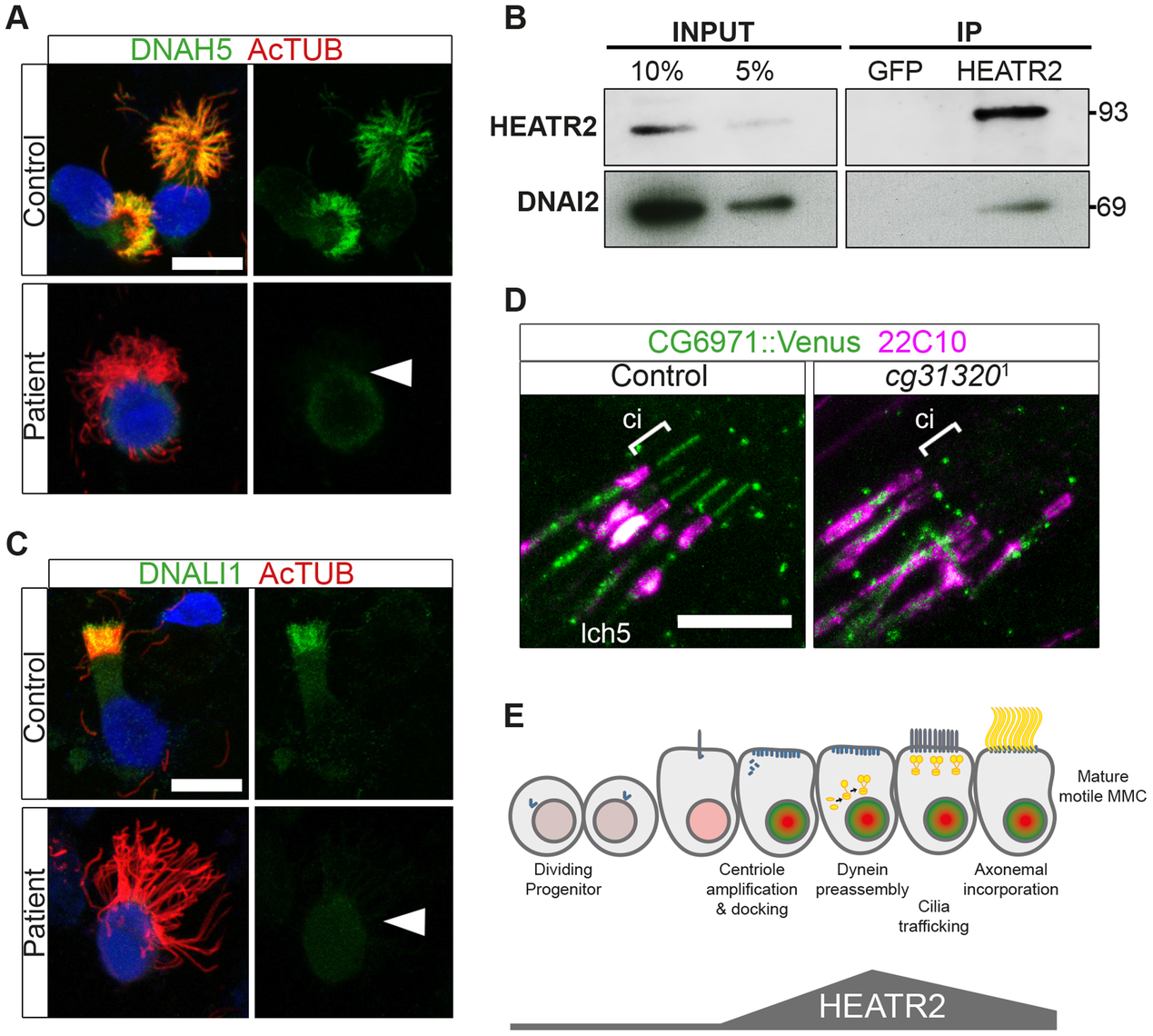 Cytoplasmic HEATR2 is required for the pre-assembly of axonemal dynein machinery necessary for motility.