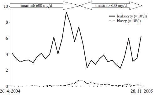 Změny hodnot leukocytů a blastů v závislosti na dávce imatinibu v době kombinované léčby blastického zvratu chronické myeloidní leukemie.