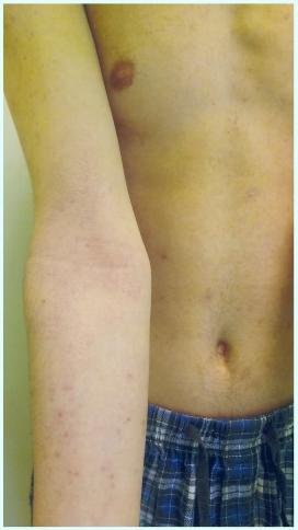 Stav pokožky po léčbě − klidové stadium