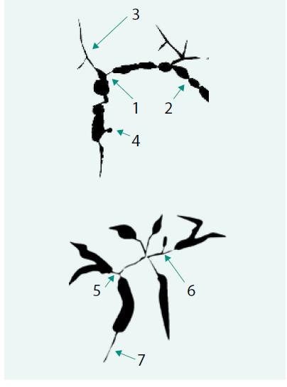 Schéma 1. Schematické porovnání cholangiografických nálezů u PSC a IgG4-ACH.