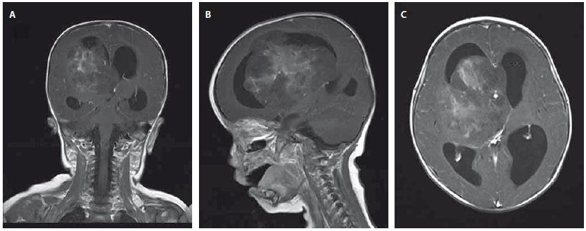 A–C. Magnetická rezonance – koronární, sagitální a axiální T1 vážené postkontrastní obrazy ukazující objemnou nehomogenně se sytící expanzi zasahující do III. a pravé postranní komory se známkami akutního hydrocephalu. Fig. 1. A–C. Magnetic resonance – coronary, sagittal and axial contrast-enhanced T1-weighted images showing a large non-homogenously enhancing lesion spreading into the III and forth ventricle, signs of acute hydrocephalus are visible.
