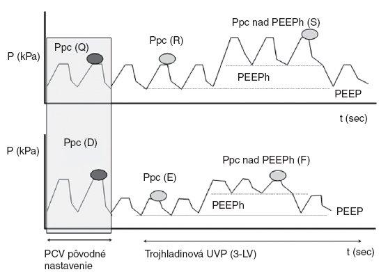 Základná fyzikálna schéma matematického 5-kompartmentného modelu, ktorý bol aplikovaný pri modelovaní výmeny plynov