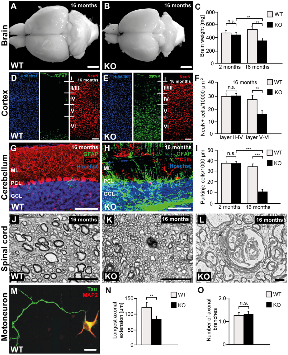 Disruption of <i>Zfyve26</i> causes severe neuron loss in the motor cortex and cerebellum.