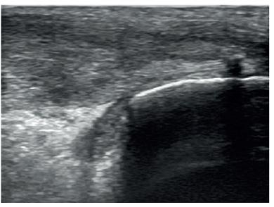 Obr. 2b Hypoechogenní a rozšířená Achillova šlacha. Kalcifikát v místě úponu šlachy na kost  s akustickým stínem.