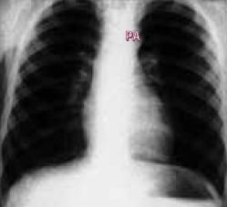 Skiagram Fallotovy tetralogie ukazuje normální vzhled kromě lehce prominující aorty.
