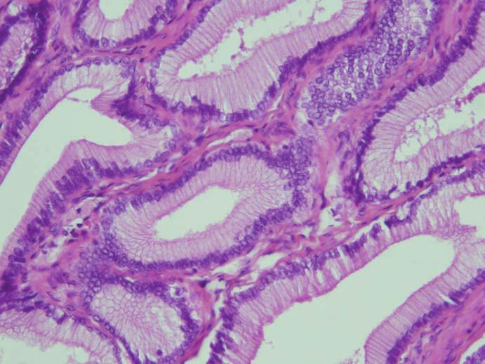 Histopatologické vyšetření. Tubulopapilární adenom v barvení hematoxylin-eozin. Fig. 4. Histopathological examination. Tubulopapillary adenoma in hematoxylin-eosin.