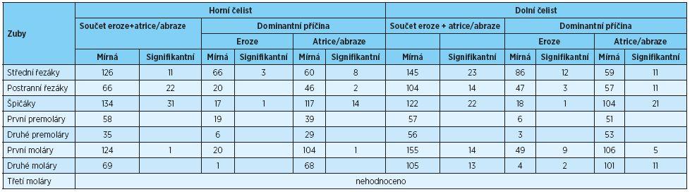 Počet zubů s defekty žvýkacích ploch v důsledku eroze a atrice/abraze