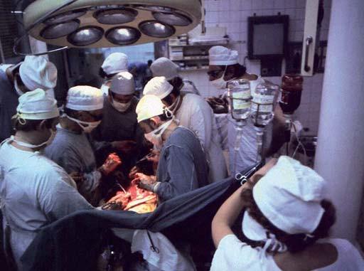 Pohled na operační tým, provádějící transplantaci jater.