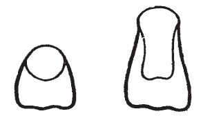 II. a IV. vývojové stadium stáleho zubu