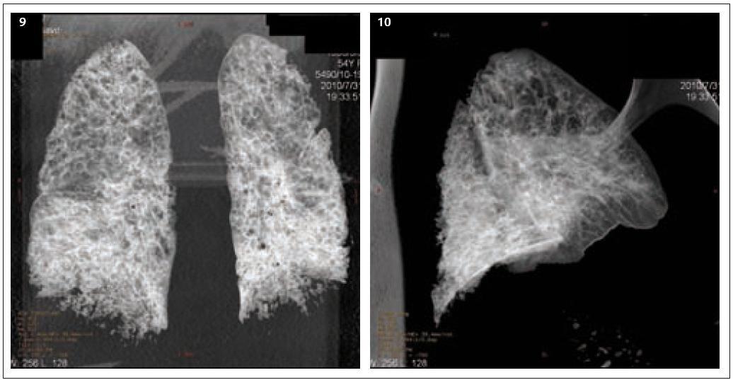 Obr. 9 a 10. CT 3D rekonstrukce vzdušných prostor plicního parenchymu nativ. CT 3D rekonstrukce vzdušných prostor ukazuje difuzní prostoupení plicního parenchymu emfyzematózními bulami velikosti 4–15 mm prakticky bez reziduální normální plicní tkáně. Bazální partie obou plicních křídel jsou prostoupeny převážně intersticiální zánětlivou infiltrací, jak ukazuje pohled z boku, soustředěnou v zadních dolních partiích plicních křídel. Závěr: Difuzní pokročilý emfyzém plic, hypostatická pneumonie v typických oblastech. CT vyšetření plic vykazuje zřetelnou převahu výpovědních schopností před prostým snímkem plic do té míry, že stojí za úvahu používat toto zobrazení na prvním místě zvláště u pacientů komplikovaných nebo ve složité klinické situaci (Popsal doc. MUDr. Petr Krupa, CSc., přednosta Kliniky zobrazovacích metod FN u sv. Anny v Brně.).