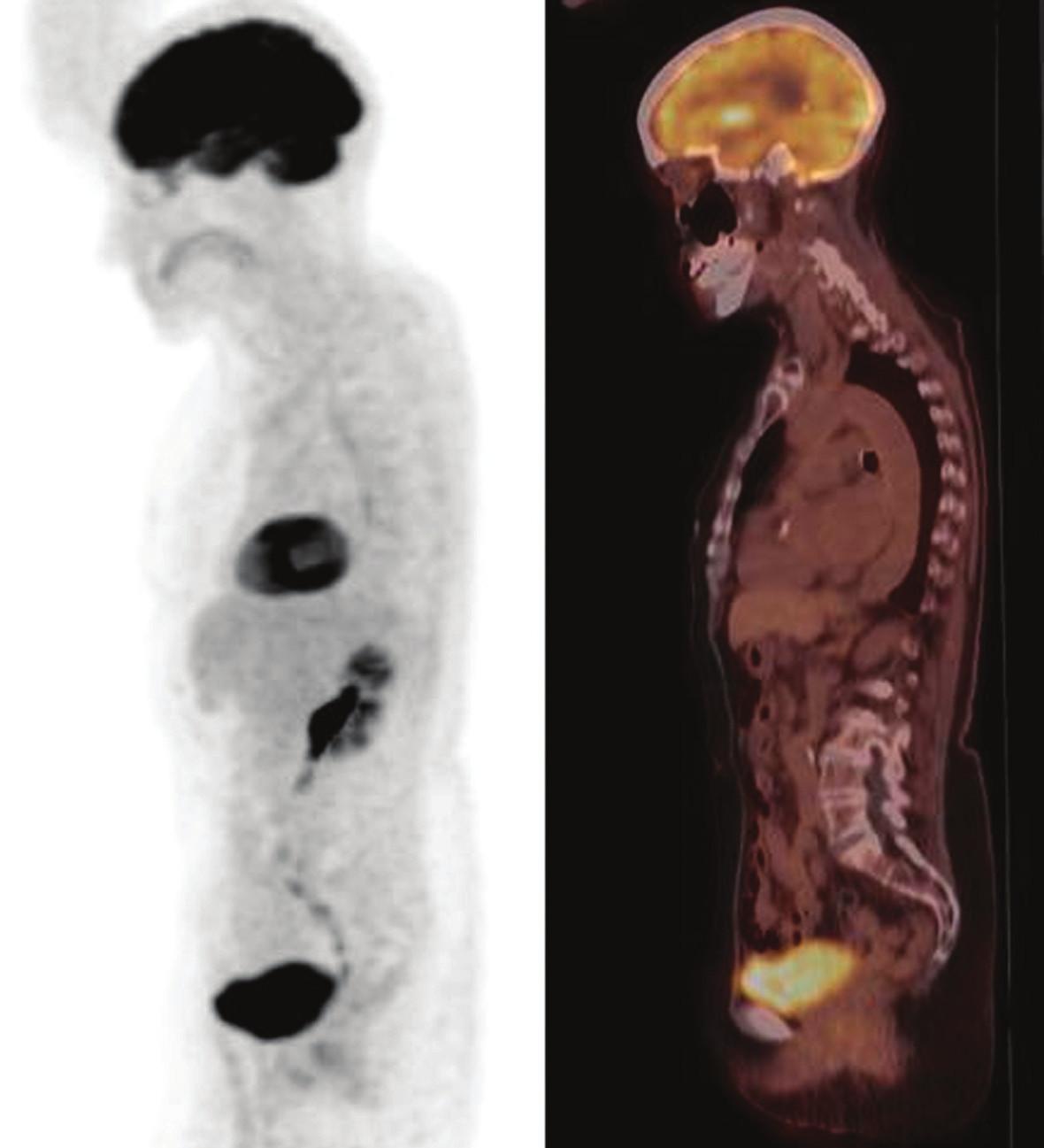 Obr. 2c. PET/CT s FDG, MIP, pohľad zľava. Kompletná metabolická remisia pretrvávajúca 20 mesiacov po ukončení liečby imatinib mesylátom.