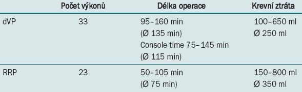 Srovnání délky výkonů obou souborů.