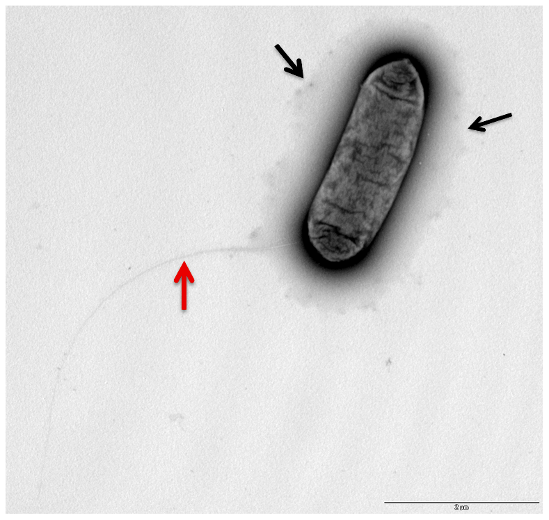 Electron microscopy showing the presence of capsule like structures.