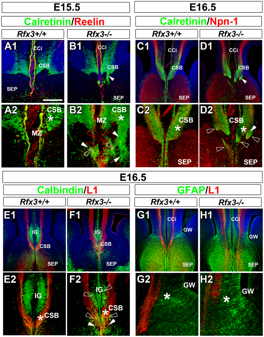 Abnormal neuron localization and aberrant callosal axon pathfinding at the onset of CC formation.