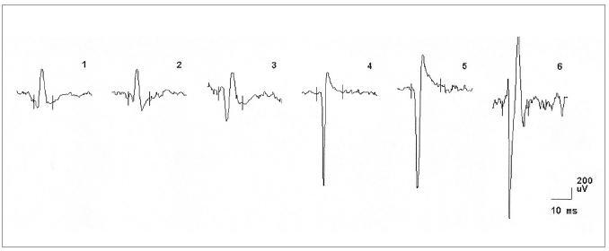 EMG nález při vyšetření musculus vastus medialis vpravo u pacientky č. 1, dokumentující změny v obraze motorických jednotek neurogenního typu (vysoká amplituda MUP, polyfázie).