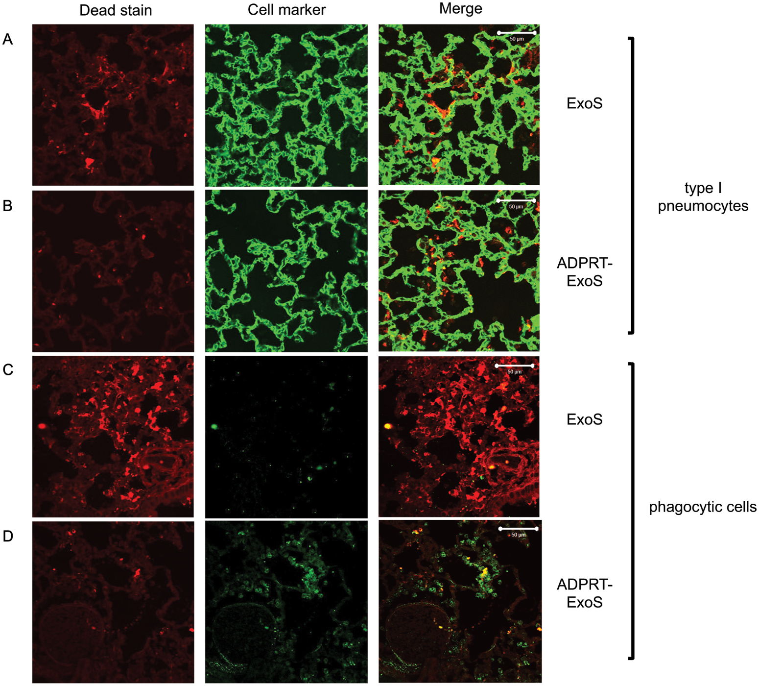 FOCI injected with ExoS contain many dead type I pneumocytes, whereas FOCI injected with ADPRT-deficient ExoS contain only a few dead phagocytic cells.