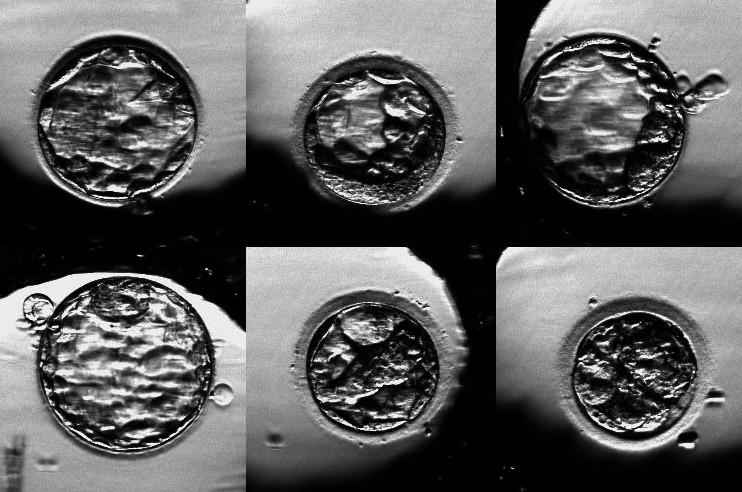 Embrya jedné pacientky, jejichž vývoj byl monitorován na systému PrimoVision. Všechna embrya již dosáhla stadium blastocysty. Cesta k tomuto stadiu ale může být u jednotlivých embryí značně odlišná.