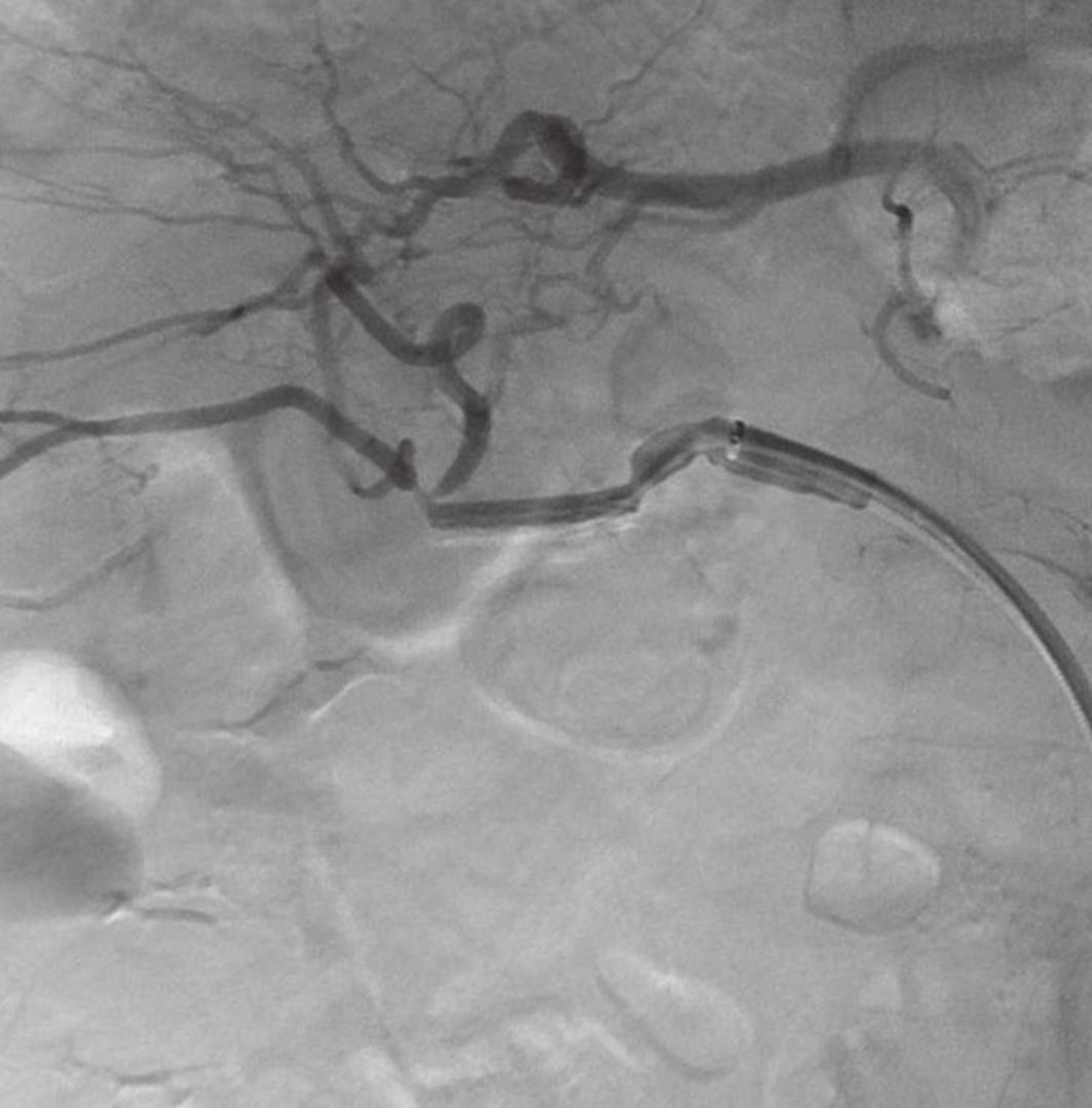 AG po zavedení stentgraftu s vymizením leaku a dobrým průtokem skrze a. hepatica Fig. 4: Angiography after stentgrafting without leakage and good blood flow through hepatic artery