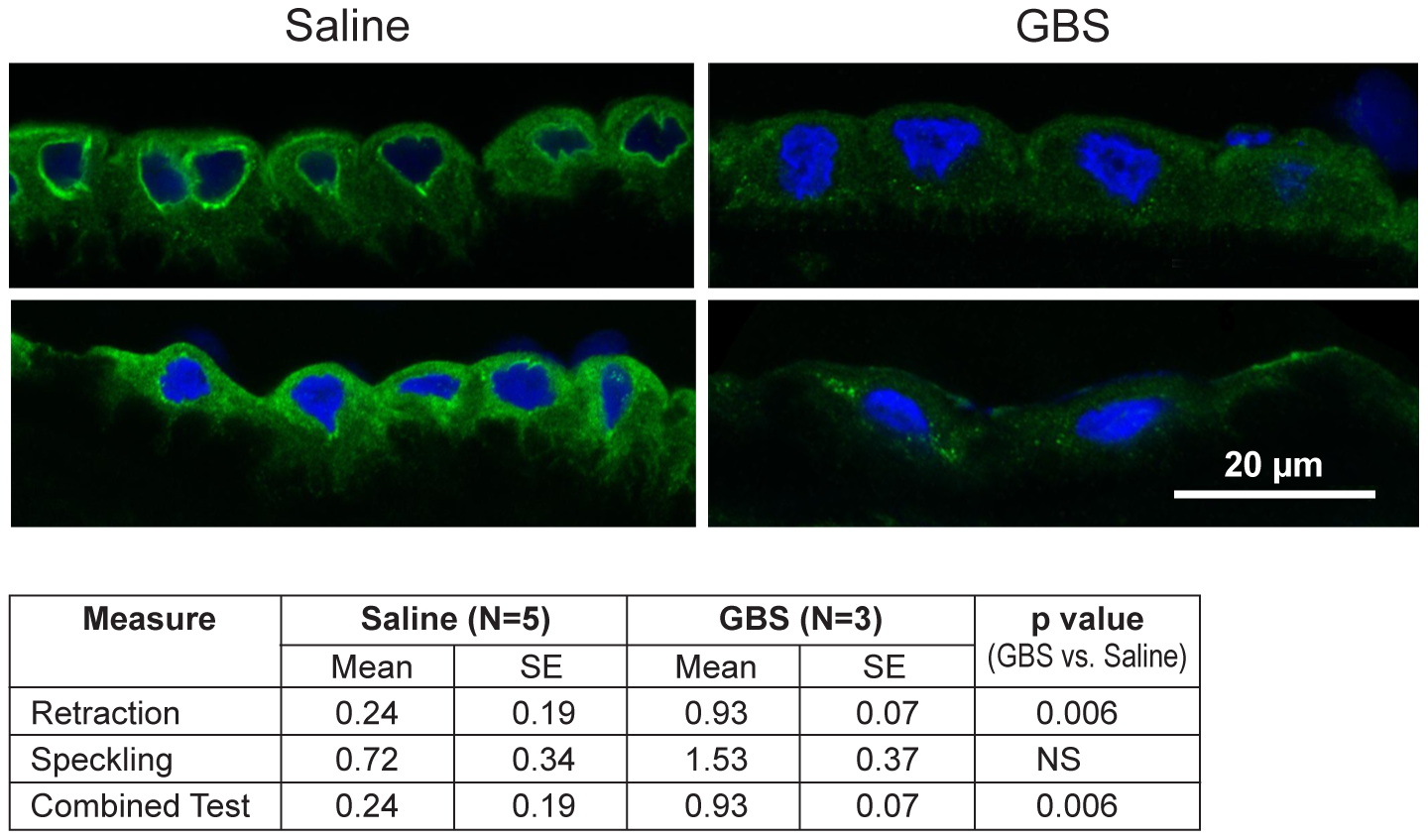 CK-6 immunostained samples of chorioamnion were imaged by confocal microscopy with representative images of saline controls and GBS cases.