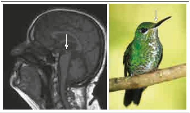 Hummingbird sign (příznak kolibříka).