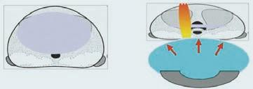 Schéma 4. Komprese a retropubická fixace prostaty po transuretrální resekci.