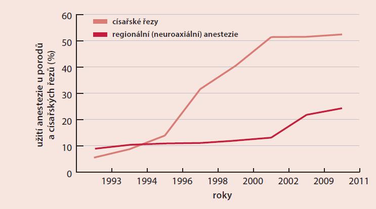 Graf. Poměr císařských řezů a regionální (neuroaxiální) anestezie v České republice v letech 1993–2011 [3,6]
