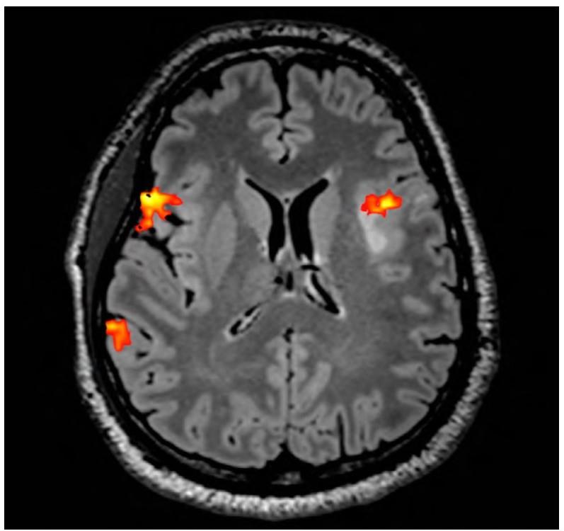 Pacient s dominantní aktivitou při řečových zkouškách v pravé mozkové hemisféře, aktivita se však objevuje i v levé hemisféře v předpokládané oblasti motorického centra, navíc v těsném vztahu k tumoru v insulární krajině (světlé ložisko těsně za oblastí aktivace)