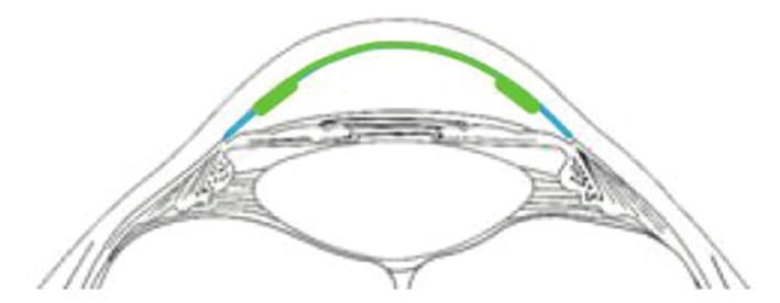 Schematické znázornění hybridního typu lamely (zeleně transplantovaný endotel, DM, stroma, modře původní endotel)