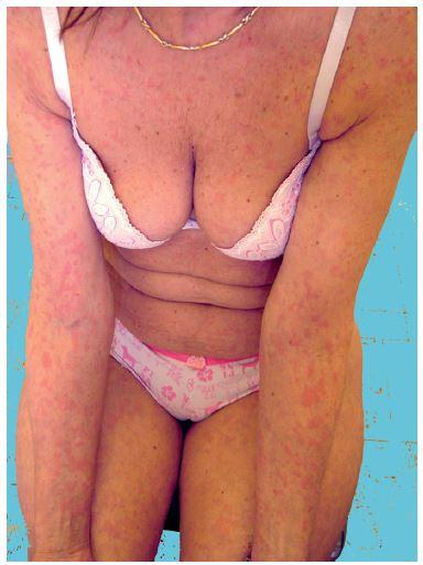 Schnitzlerové syndrom s urtikariálním výsevem (z archivu)