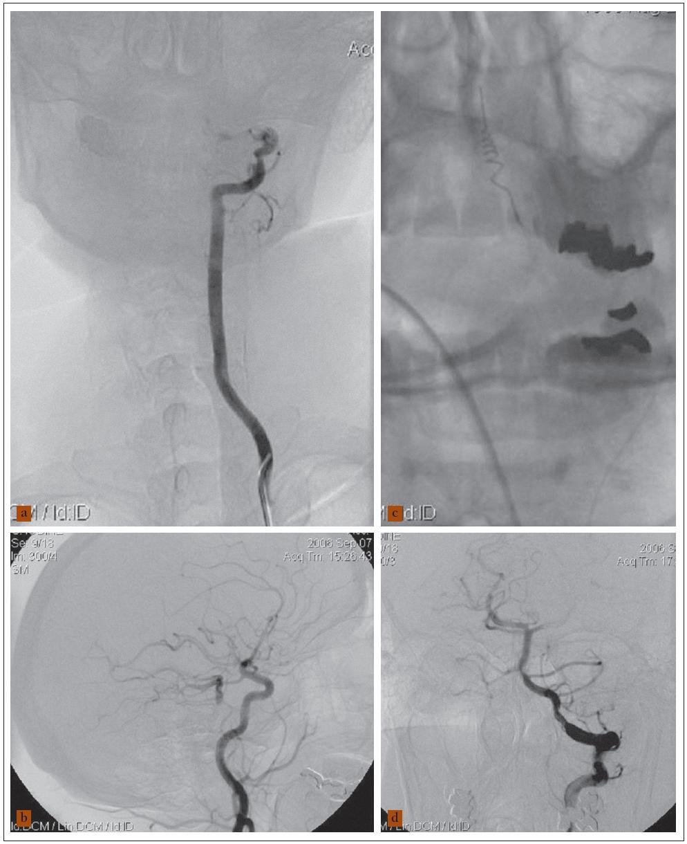 58letý muž a akutní vertebrobazilární ischemií, kvadruparézou, deviací bulbů, arteficiálně ventilován. a) Angiogram levé vertebrální tepny ukázal uzávěr jejího intrakraniálního úseku a neplnění a. basilaris (a. vertebralis dx. intrakraniálně uzavřena – není na obrázku). b) Angiogram levé karotické tepny zobrazil plnění distálního úseku a. basilaris, aa. cerebri post. a aa. cerebelli post. přes a. comm. posterior. c) Rozvinutá spirálka Merci zařízení v oblasti embolu a. basilaris. d) Angiogram levé vertebrální tepny po extrakci embolu ukázal průchodné vertebrobazilární řečiště. Nemocný tři měsíce po léčbě mRS 2.